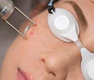 激光去斑 Laser Pigmentation